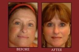 Fractional CO2 Laser Skin Resurfacing   Facial Plastic Surgeon Salt Lake City, Facelift - Browlift, Rhinoplasty, Utah Eyelid Surgery by Dr. Scott Thompson   Facial Plastics   Scoop.it