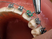 Orthodontist Baltimore MD - Orthodontic Treatment in Maryland | Dentistry Baltimore | Scoop.it