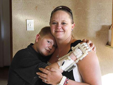 Un jeune garçon peut de nouveau enlacer sa mère grâce à une prothèse imprimée en 3D | Imprimante 3D : ils l'ont fait ! | Scoop.it