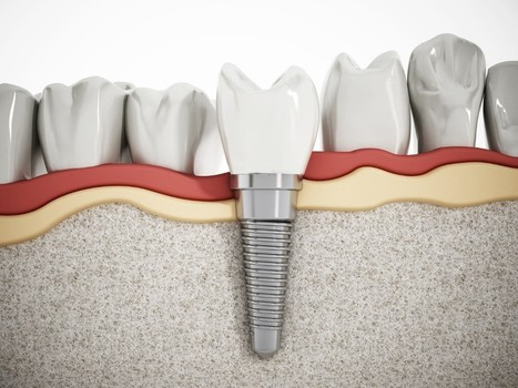 Dental Implants or Dentures for Tooth Loss: Which is the Best Option? | Downtown Dental | Scoop.it