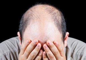 Saç ekimi ile özgüven kazanın - | Dökülen saçlar umutsuzluk olmamalı | Scoop.it