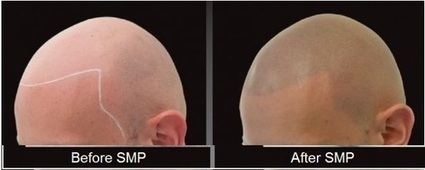 Scalp Micro Pigmentation: Innovative solution for Baldness | Prohair Clinic | Scoop.it