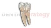 Dentalstrategy | prótesis dental | Scoop.it