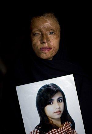 Saira Liaqat, a survivor of an honor crime. | Petrova West Bank | Scoop.it