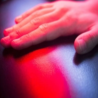 Fototerapia para tratamiento de vitiligo y psoriasis | vitiligo | Scoop.it