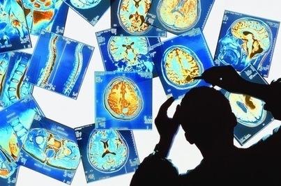 Le cerveau humain, complexe, prodigieux, mystérieux - La Croix | La vie , la santé en microscopie électronique | Scoop.it