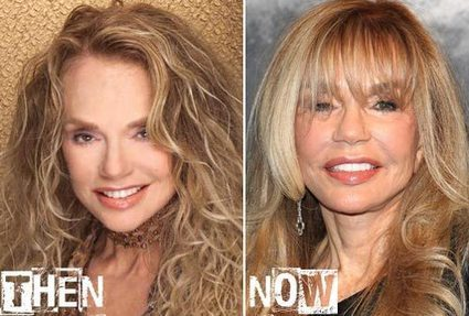 Dyan Cannon Plastic Surgery Before & After Photos | Celebrity Plastic Surgery | Scoop.it