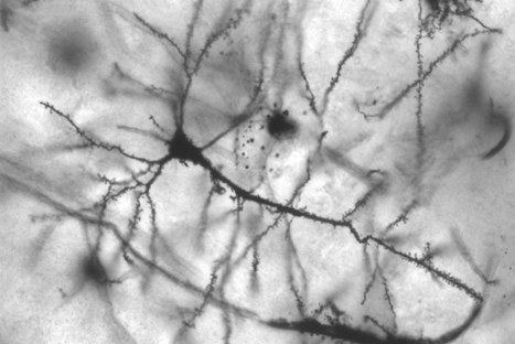 Branch-Like Dendrites Function As Mini-Computers In The Brain ...   EduTech   Scoop.it