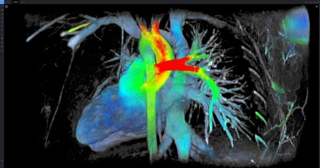 See the Heart in 7 Dimensions: This Team of German Researchers Attacks Europe's Biggest Killer with Software - GE Reports | Innovation in Manufacturing Today | Scoop.it