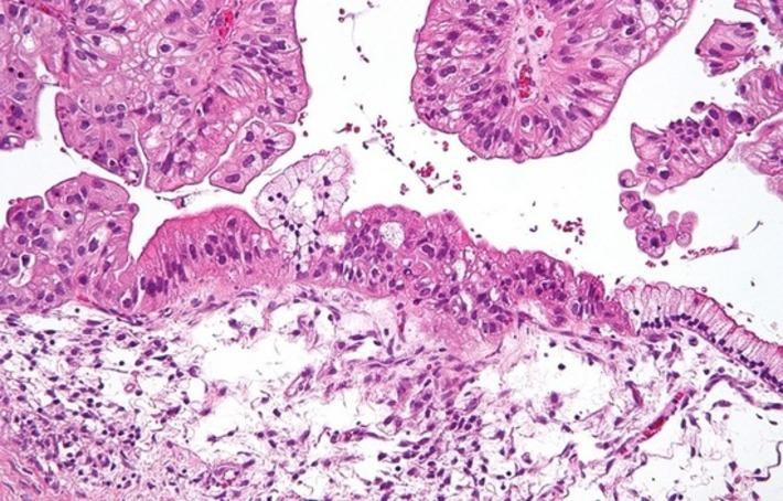 Cancer des ovaires: Johnson & Johnson, fabricant de talc, condamné à verser 55 millions de dollars   Cancer Contribution   Scoop.it