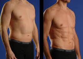 Don't Live With Fat Bulges: Vaser Lipo Delhi May Help You | Cosmeticsurgerydelhi | Scoop.it