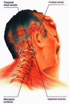 Chiropractic Is Shown To Help Headaches   Chiropractic treatment in jacksonville   Scoop.it