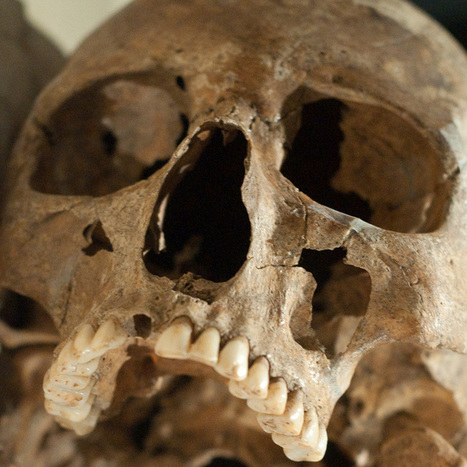Ancient Chompers Were Healthier Than Ours : NPR | Insight and Understanding | Scoop.it