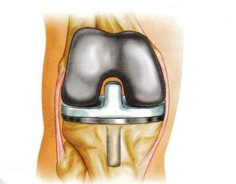 Affordable Knee Joint Replacement Surgery | Joint Replacement Surgeon India | Scoop.it
