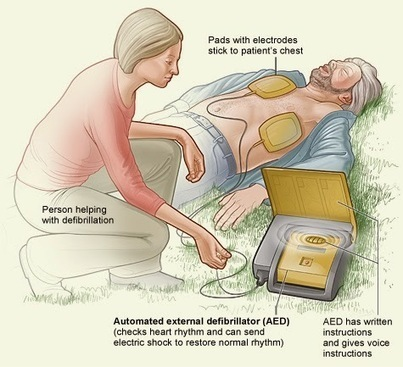 Global Business Research Reports: United States External Defibrillators Market 2014, Global Industry Analysis, Size, Share, Growth, Trends and Forecast | Market Research | Scoop.it