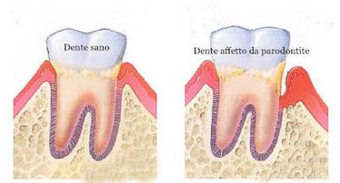 Parodontite e rigenerazione ossea | Studio Degidi Bologna | Blog Implantologia Dentale Degidi | Scoop.it