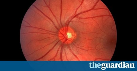 Google DeepMind pairs with NHS to use machine learning to fight blindness | Digital Transformation of Businesses | Scoop.it