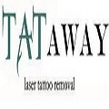 Complimentary Radiation Tattoo Removal at Tataway | PicoSure Laser Tattoo Removal at Tataway | Scoop.it