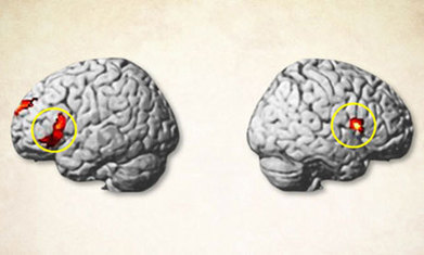 Brain-controlling magnets (Transcranial Magnetic Stimulation): how do they work?   Social Foraging   Scoop.it