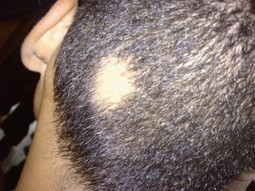 What can you do when suffering from hair diseases? | Hair Transplantation | Scoop.it