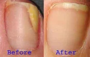 Learn how to avoid toe fungus | Deal with Toe or Nail Fungus | Scoop.it