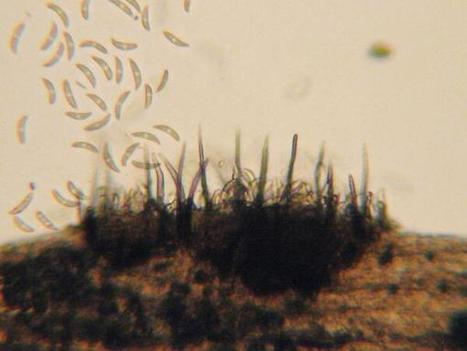 Summer may be over, but anthracnose hasn't finished with it's job of killing poa | Plant Pathology | Scoop.it