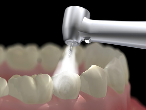 Affordable Dental Fillings In India: Which One Do You Need?   Dental Clinic Delhi   Scoop.it