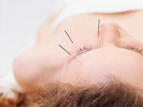 How facial acupuncture can give you the natural lift you crave | Acupuncture, its benefits and risk | Scoop.it