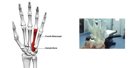 Chinese Doctors Complete Extremely Difficult Wrist Surgery Thanks to 3D Printing   tecnologia s sustentabilidade   Scoop.it