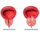 Prostate Enlargement - Prostate Enlargement Treatment Bangalore   NU Hospitals   Scoop.it
