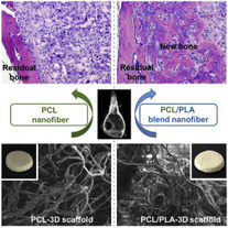 Three dimensional electrospun PCL/PLA blend nanofibrous scaffolds with significantly improved stem cells osteogenic differentiation and cranial bone formation | Osteoporosis New drugs Review | Scoop.it