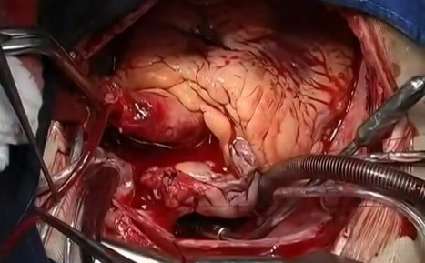 Heart Transplant Footage Shows How Far Medical Science Has Come | Organ Donation & Transplant Matters Resources | Scoop.it