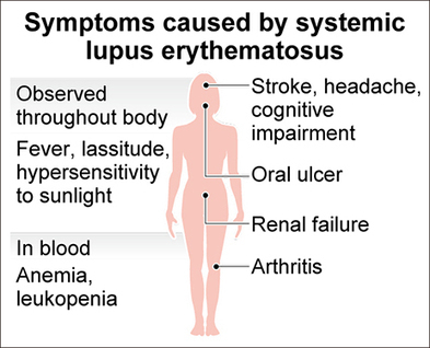 Scientists confirm gene mutation linked to lupus - AJW by The Asahi Shimbun | Biomedical Beat | Scoop.it