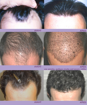 Robot Hair Transplant | Bangkok Plastic Surgery... | Plastic Surgery In Thailand | Scoop.it