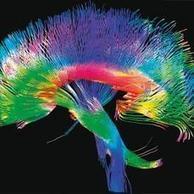 El cerebro humano trabaja al borde de la locura | Oral Medicine and Pathology | Scoop.it