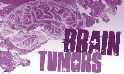 Novel drug mechanism that fights brain cancer | Usal - MediNews | Scoop.it