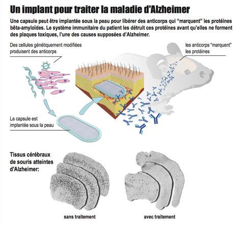 Une puce implantable pour prévenir Alzheimer | Le pouvoir du transhumanisme | Scoop.it
