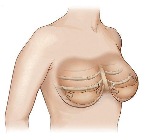 El sujetador bajo la piel. Efesalud.com | Apasionadas por la salud y lo natural | Scoop.it