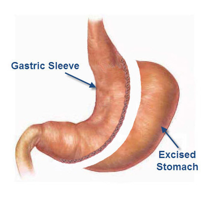 What is a Sleeve Gastrectomy | Gastric Sleeve | Health Help - Sleeve Gastrectomy | Scoop.it