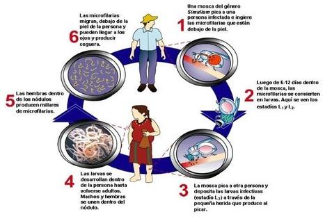 Programa para la eliminación de la Oncocercosis.   Oncocercosis (Onchocerca volvulus)   Scoop.it