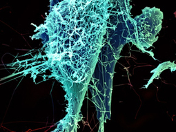 Rabies Vaccine Protects Nonhuman Primates against Deadly Ebola Virus   Virology News   Scoop.it