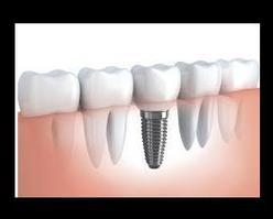 What Are Dental Implants? | Medical Questions and Answers | Scoop.it