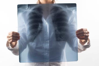 Gene study helps understand pulmonary fibrosis | Idiopathic pulmonary fibrosis | Scoop.it