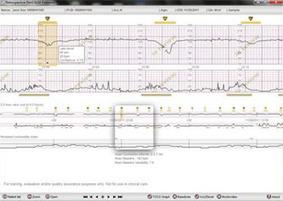 PeriCALM Plus Perinatal Monitoring Software from Perigen | Génie biomédical clinique | Scoop.it