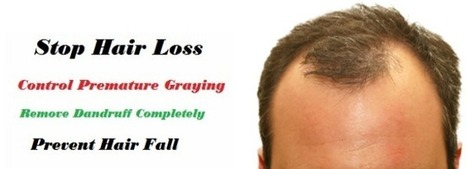 Hair Loss Solutions - Daily Basics | hair loss solutions | Scoop.it