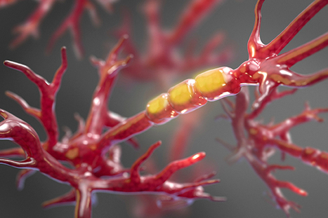 Harvard researchers pinpoint enzyme (RIPK1) that triggers cell demise in ALS | Amazing Science | Scoop.it