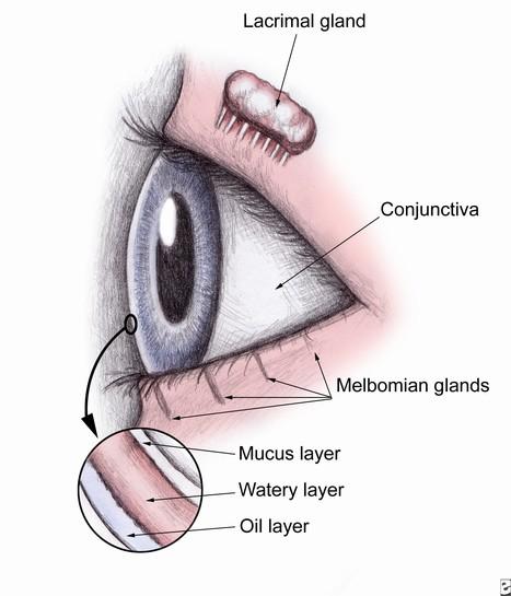 Computer Vision or Dry Eye   Eye Care   Scoop.it