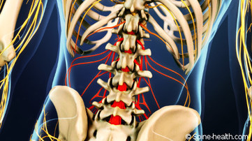 6 Overlooked Remedies for Lower Back Pain Relief - Spine-Health | sciatica relief | Scoop.it