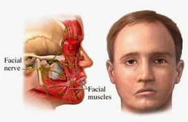 Bell's Palsy, What Is Bell's Palsy? | Health Articles | Scoop.it