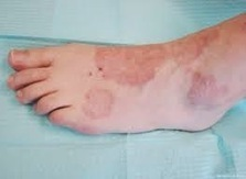 What Is Granuloma annulare?   CURE HERBALS   Scoop.it